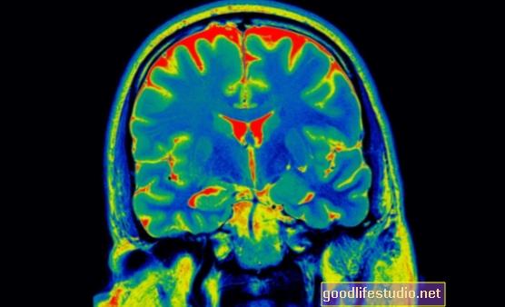 Hype Scan Otak PTSD