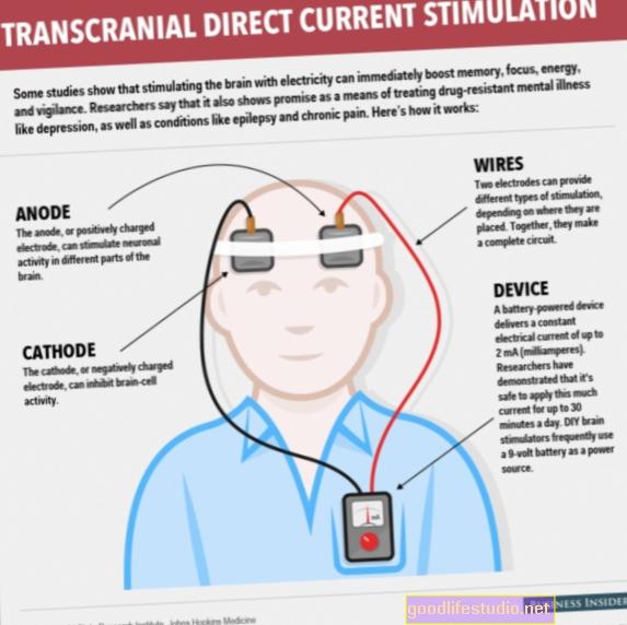 Rangsangan Arus Transkranial: Rawatan Elektrik Baru untuk Kemurungan?